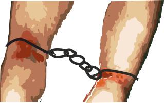 איזוק בחוזקה ברגליים - אילוסטרציה